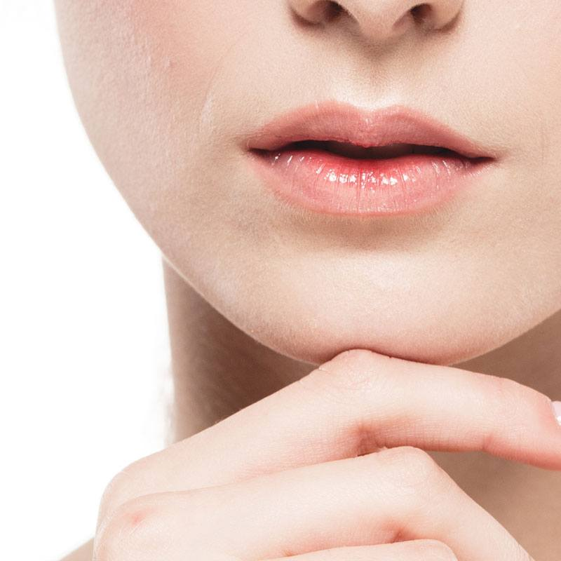 Mouth-corner fold filler treatment - Marionette lines - The