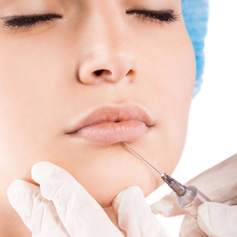 Hyaluronic acid treatments - Temporary filler - The Body Clinic