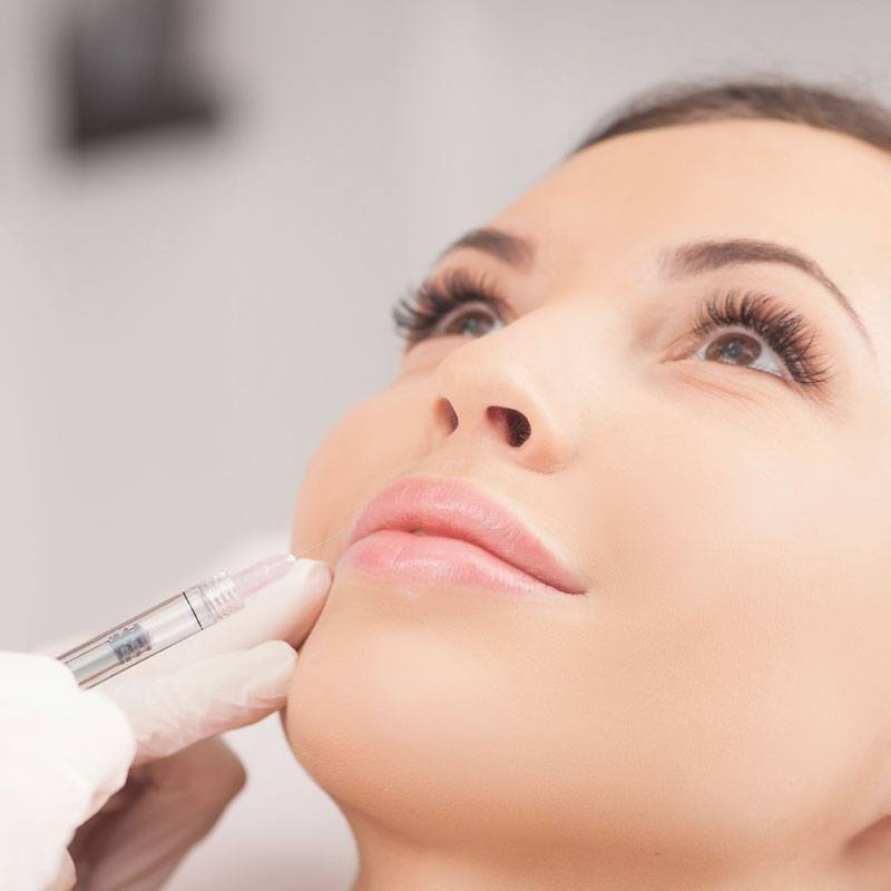 Lip fillers - Fuller lips - Amsterdam and Duiven | The Body