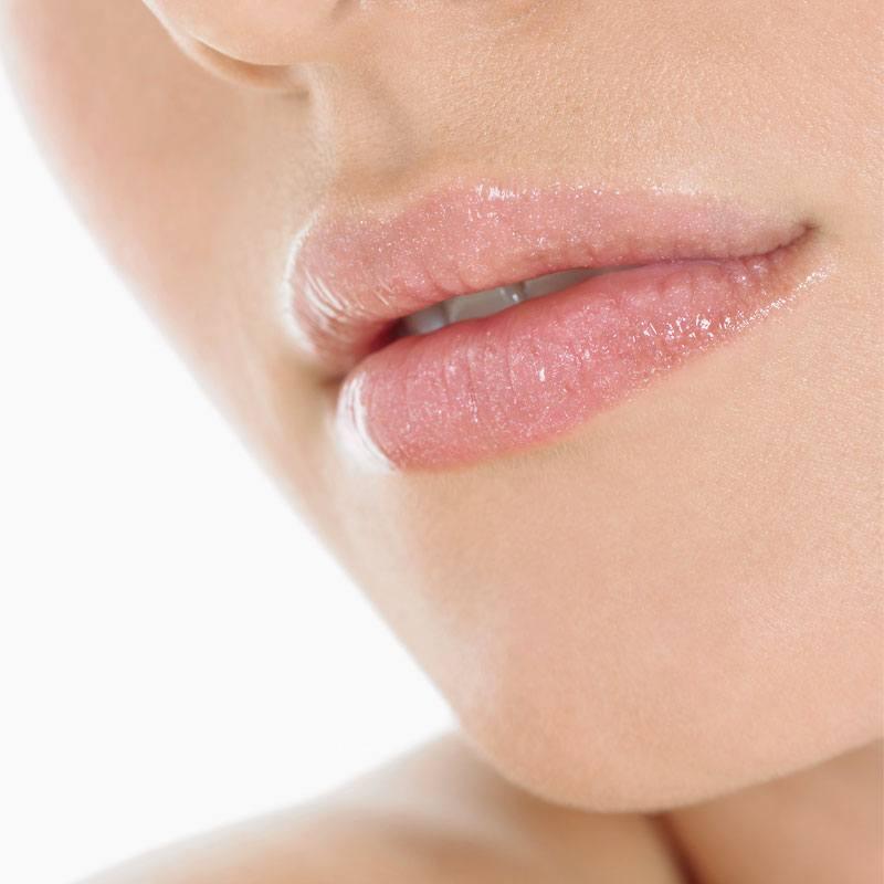 Lippen opvullen gallery 4