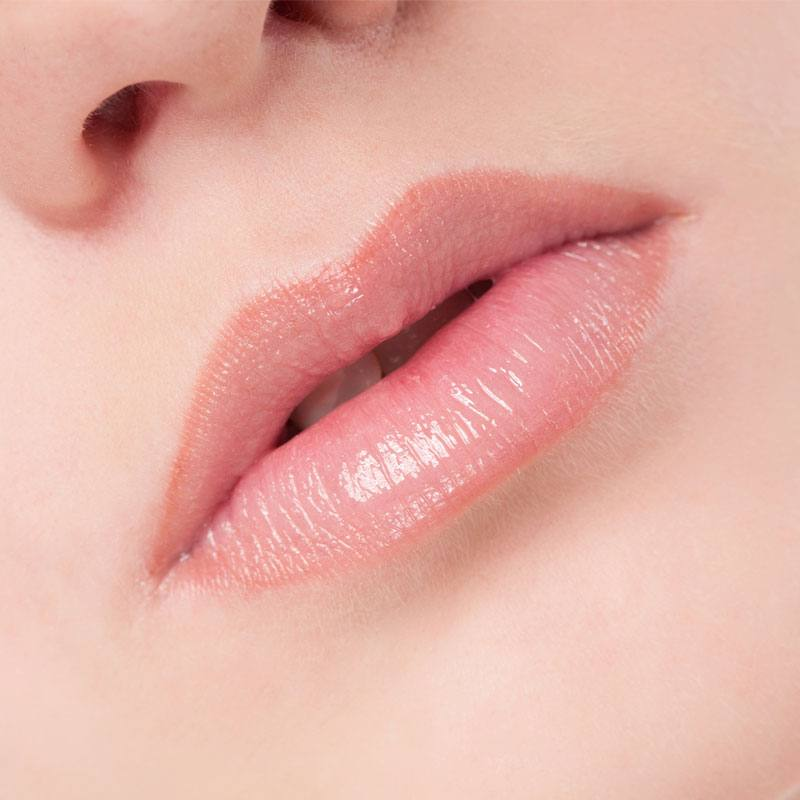 Lippen opvullen gallery 6
