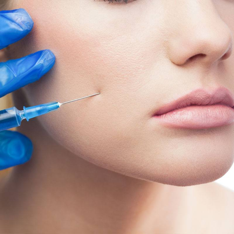 Radiesse filler - Stimulates production of collagen - The