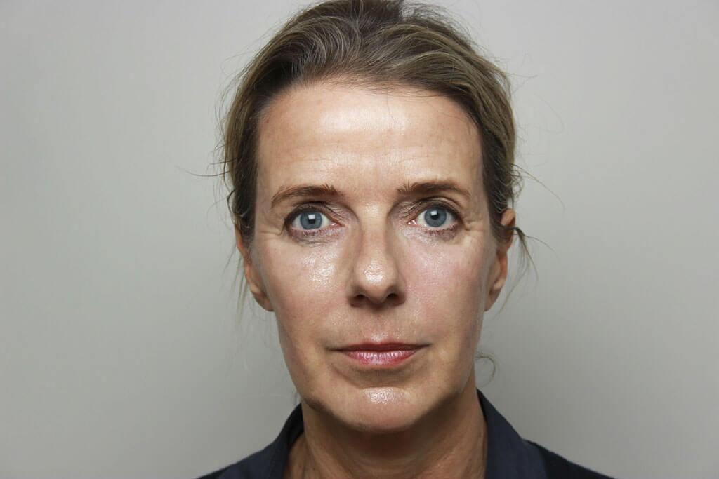nafoto liquid facelift vrouw