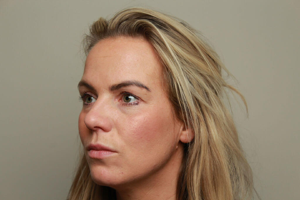 Fillers - Fillers Offer - - Fillers Amsterdam and Duiven | The Body