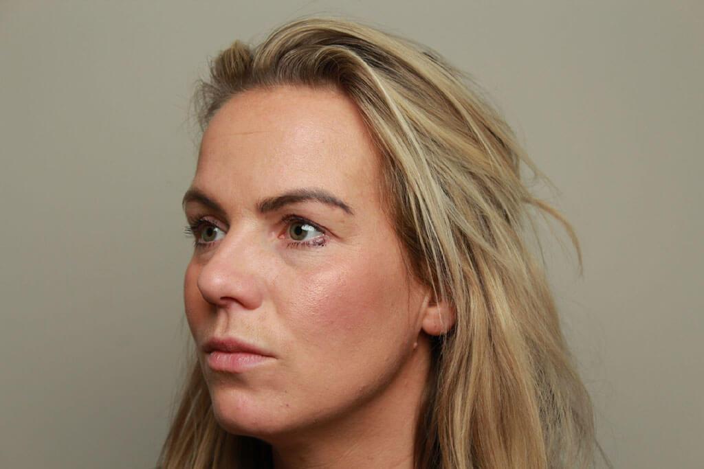 voor foto zijaanzicht lippen model 2