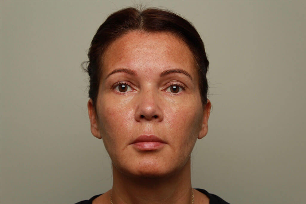 Liquid facelift- Facelift without surgery | The Body Clinic