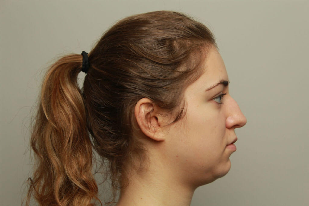 Nosecorrection fillers - Nosecorrection without surgery | The Body
