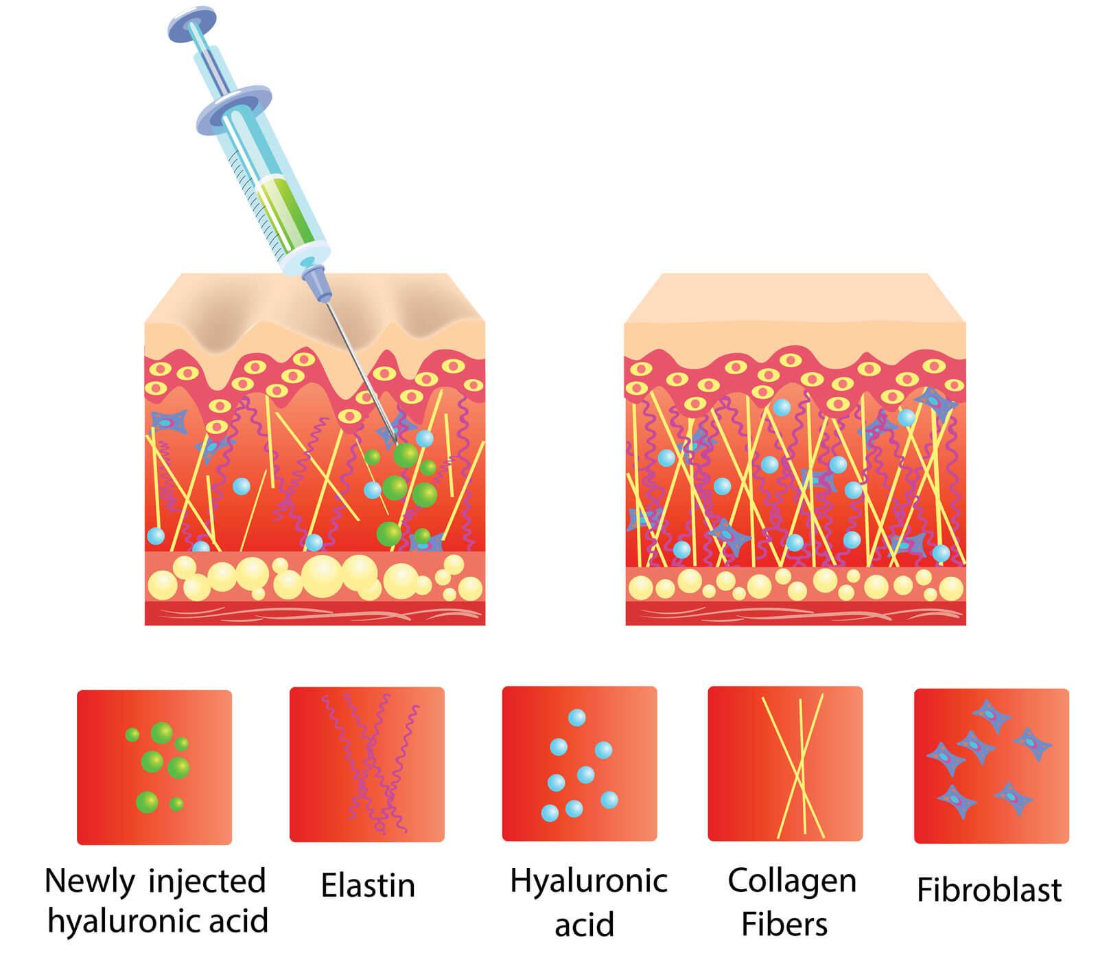 hyaluronzuur injectie werking